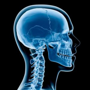 Neck X-ray
